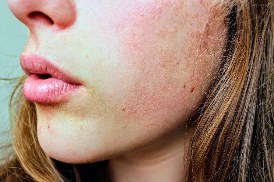 peau très reactive